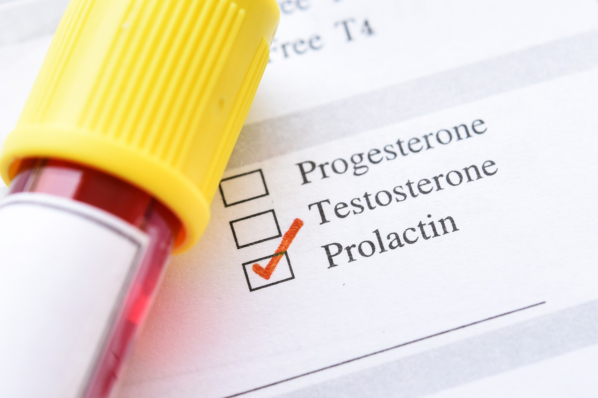 High Levels of Prolactin in Women Inversely Linked to T2D Risk