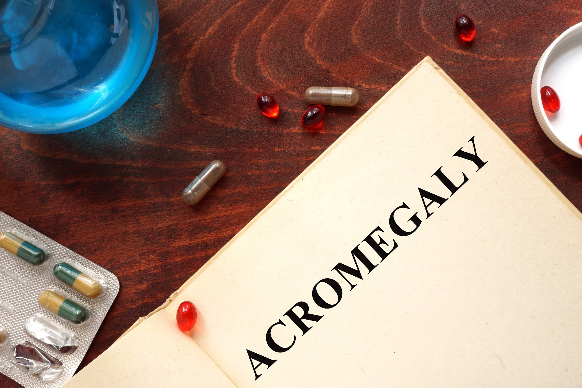 Early Manifestations, Sex Differences May Aid in Acromegaly Diagnosis