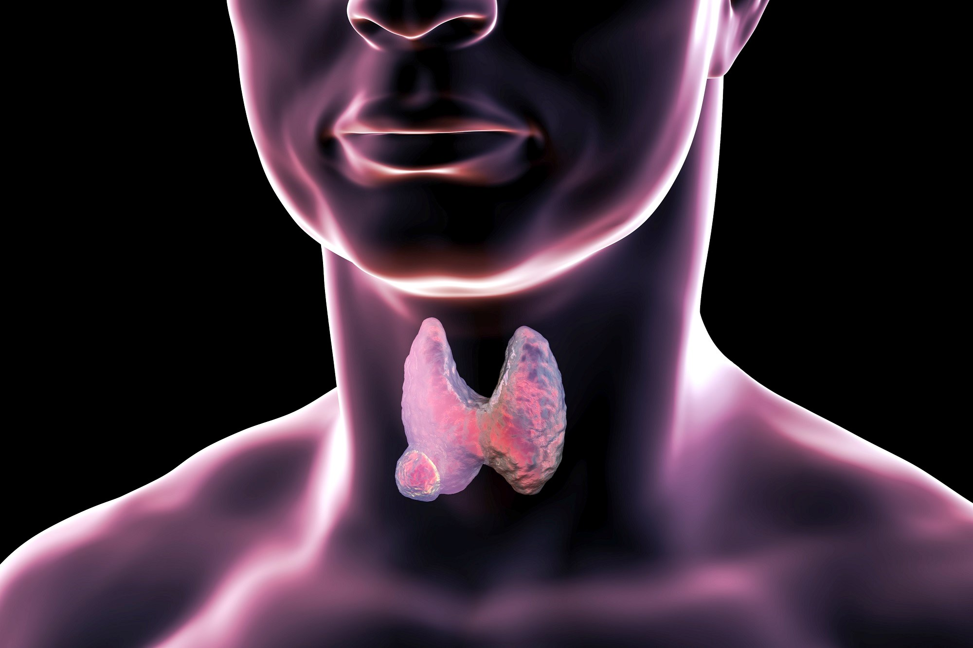 Genetic Test Helps Identify Benign vs Malignant Thyroid Nodules