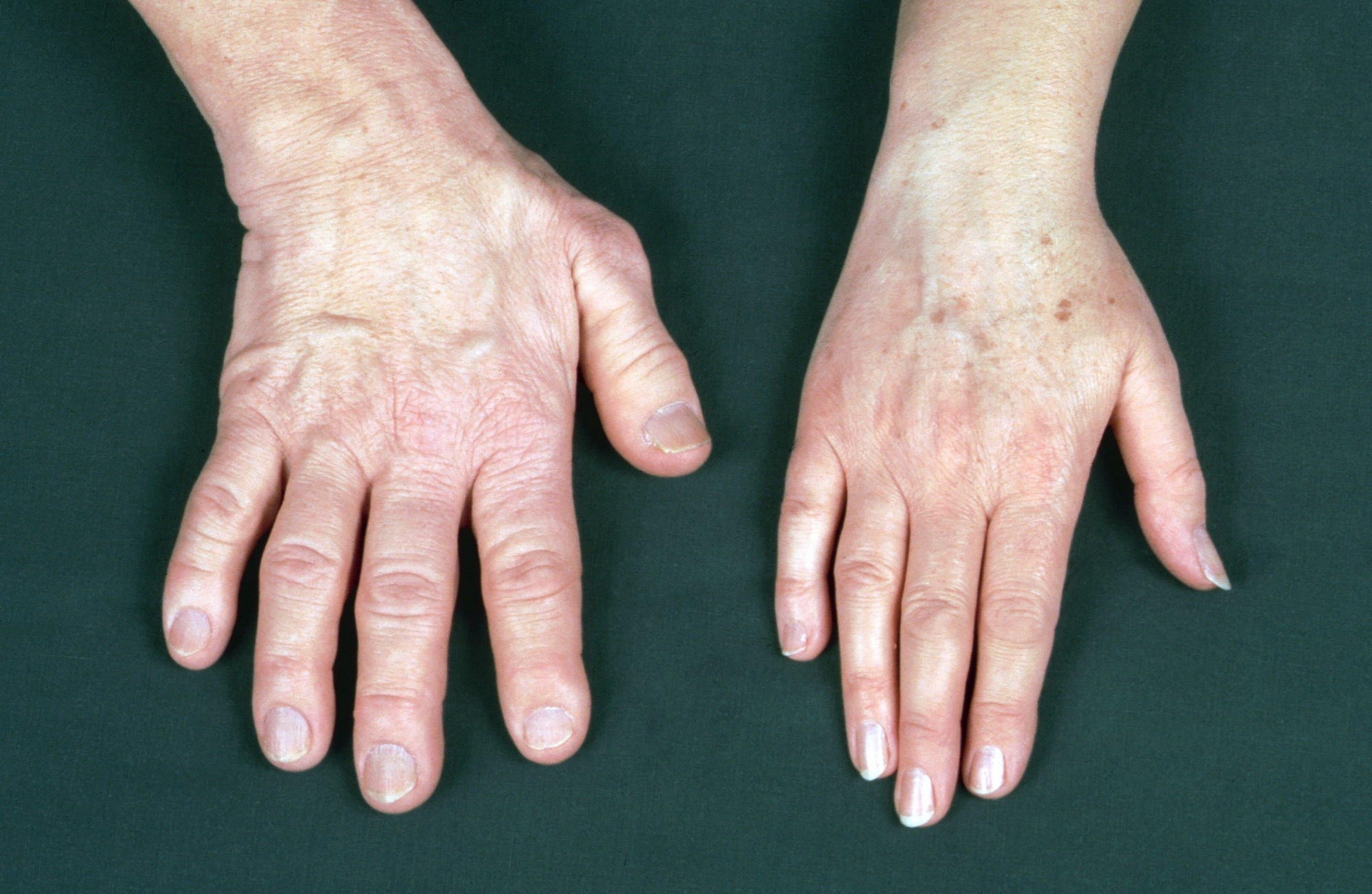 Acromegaly Outlook Improves With Better Diagnostics and Treatment