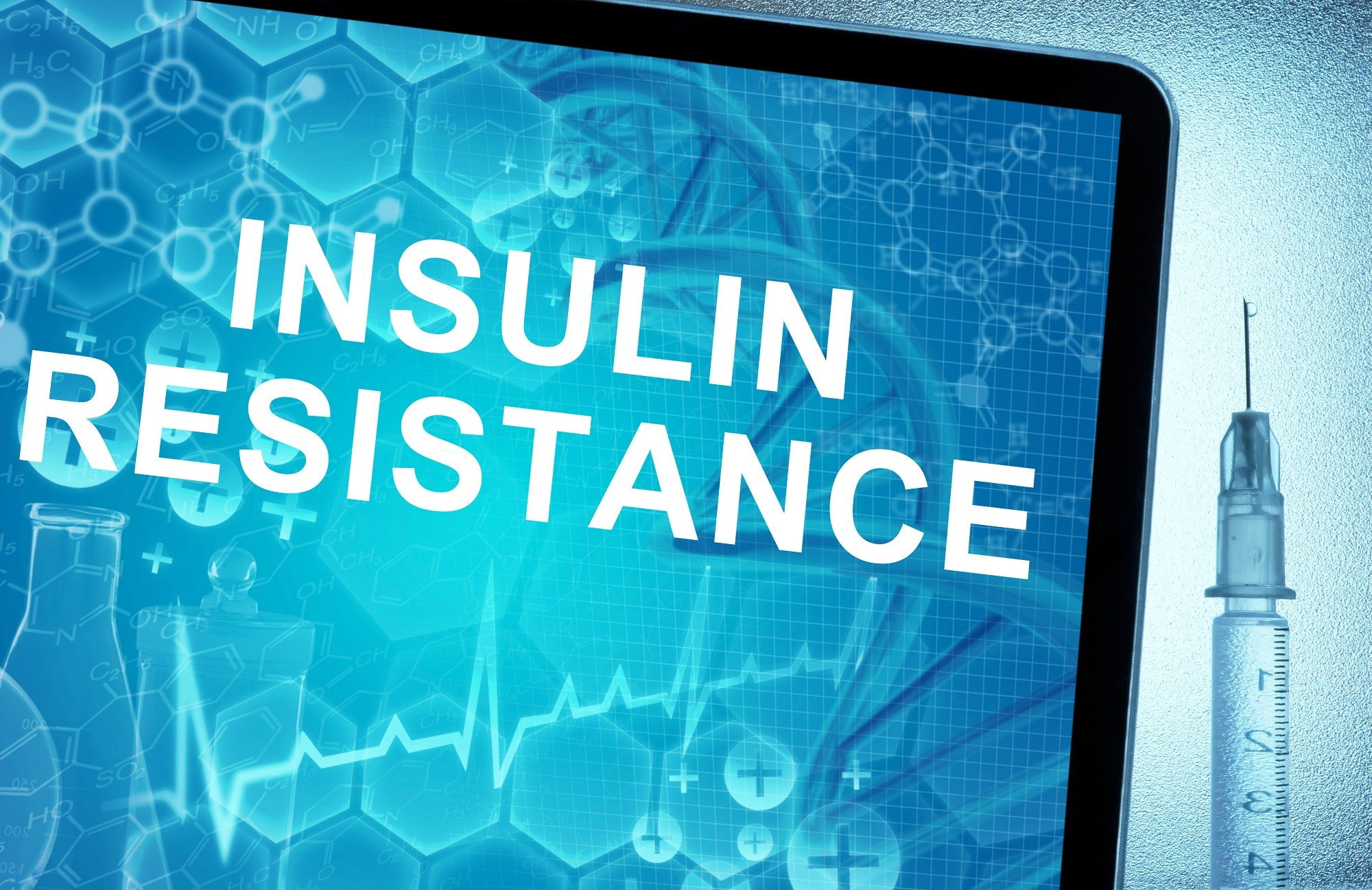 Insulin resistance is a common metabolic complication of obesity that has been implicated in the fat-bone connection.
