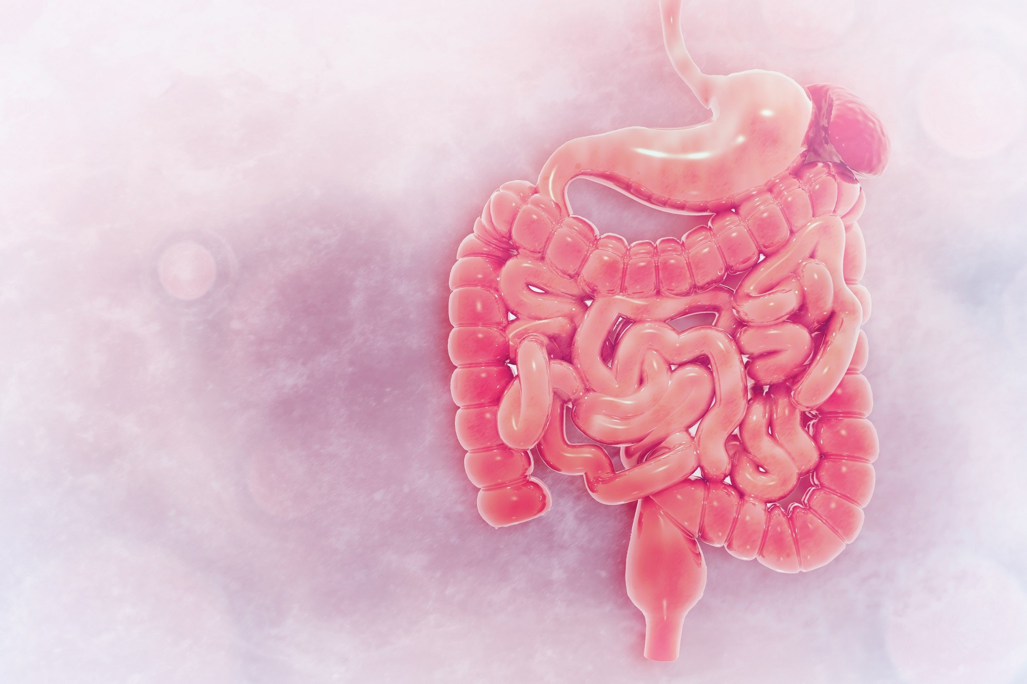 Patients who have the entire or left side of the colon removed show increased risk for developing type 2 diabetes in the 18 years following surgery.