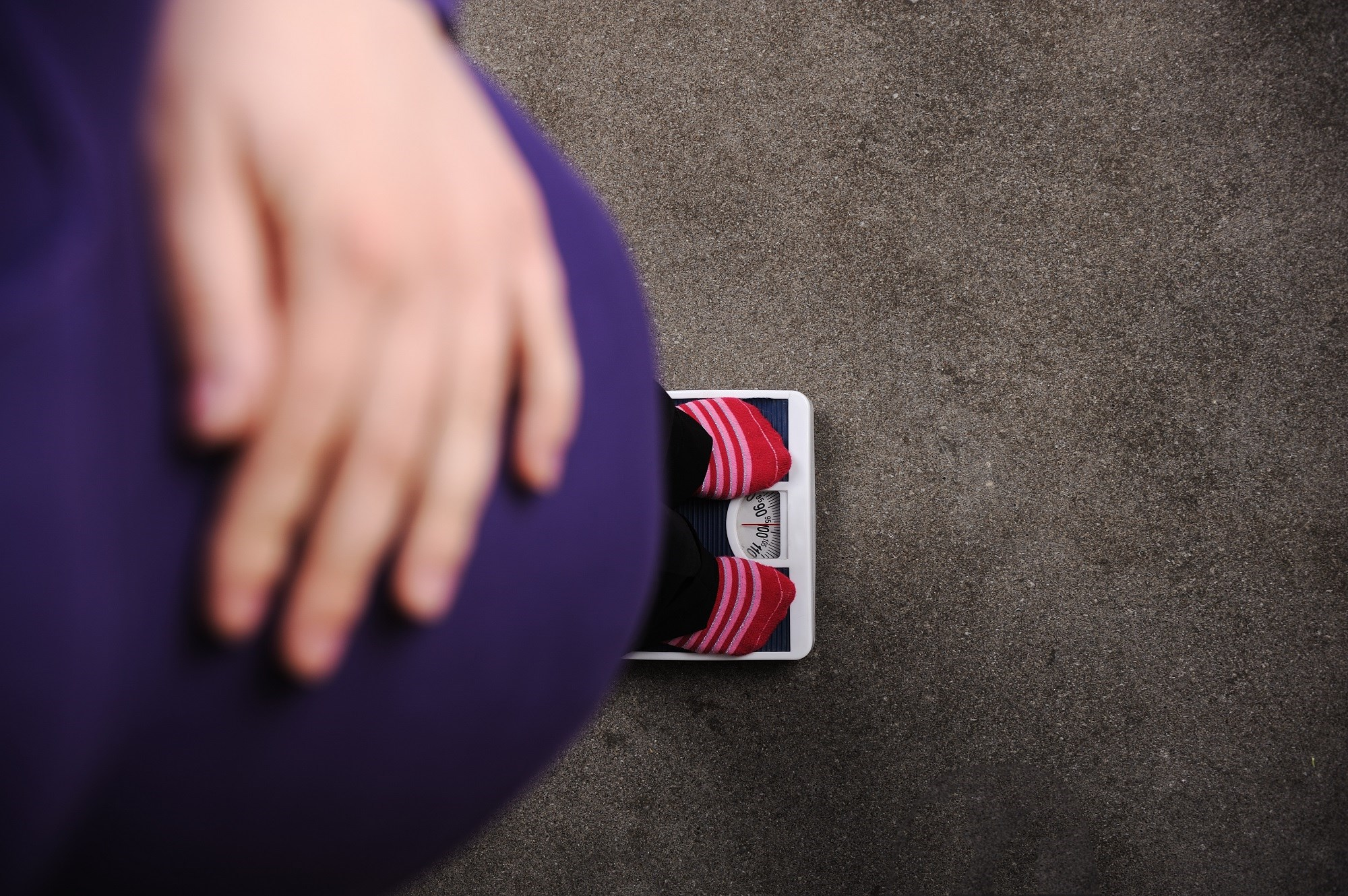 Large For Gestational Age a Strong Predictor of Overweight, Obesity in Childhood