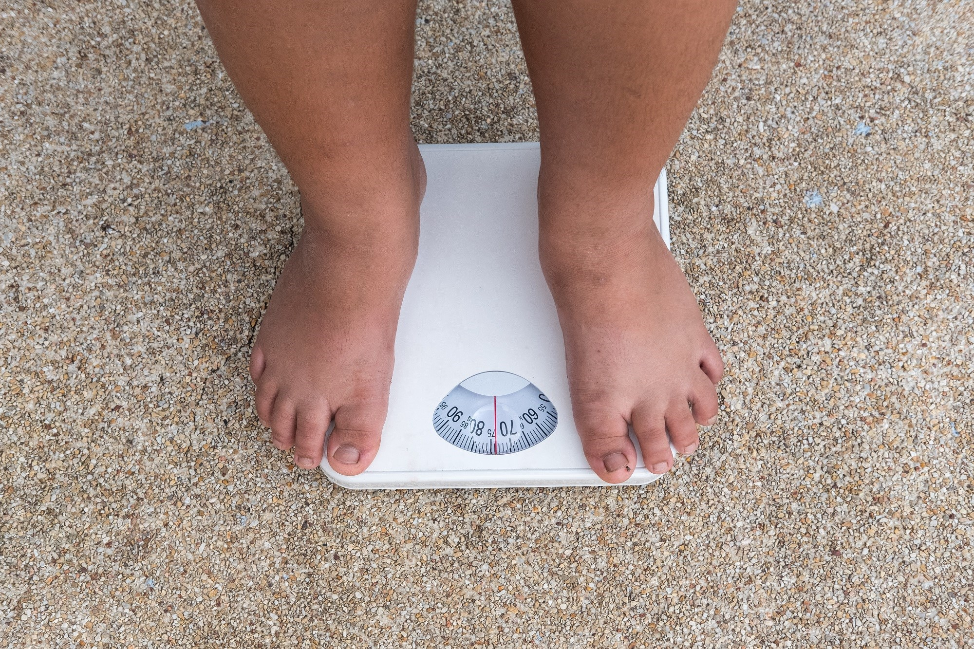 "Some obese individuals do not develop metabolic disorders at a certain point in time, and these individuals have been described as ""metabolically healthy obese."""
