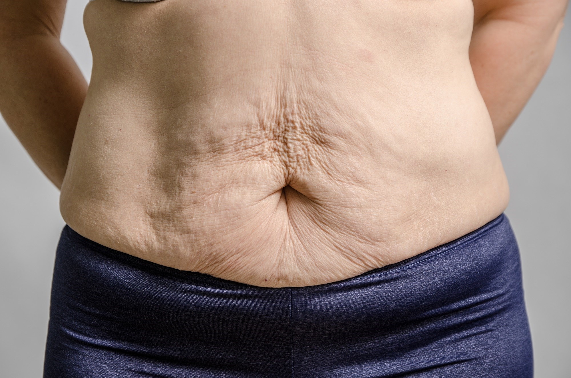 Obesity Subtype May Determine Outcomes After Bariatric Surgery