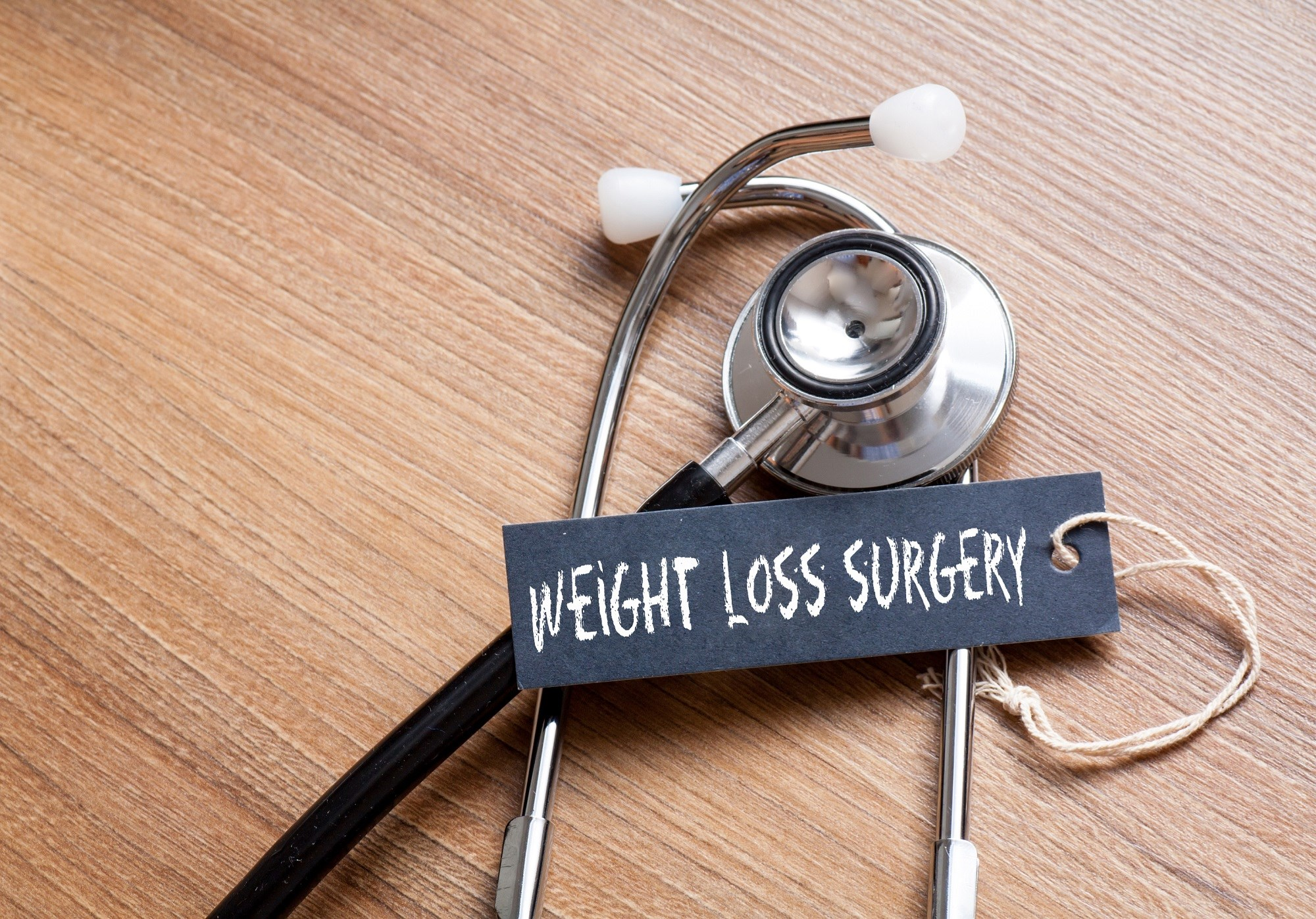 A large proportion of the U.S. population seems to have negative attitudes toward weight-loss surgery.