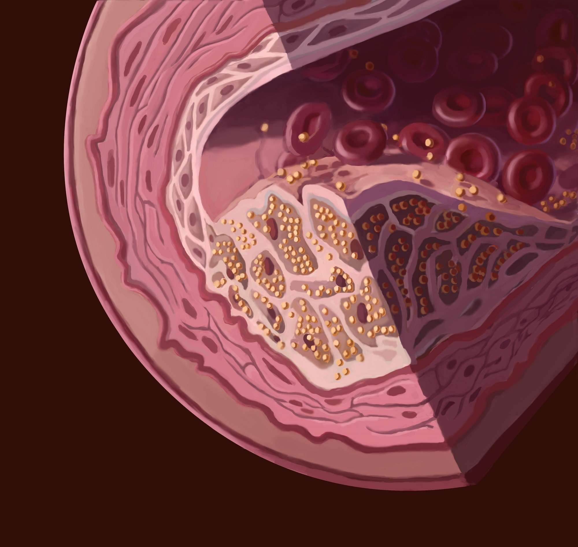 Early detection of familial hypercholesterolemia is important to forestall major premature cardiovascular events in young adulthood.