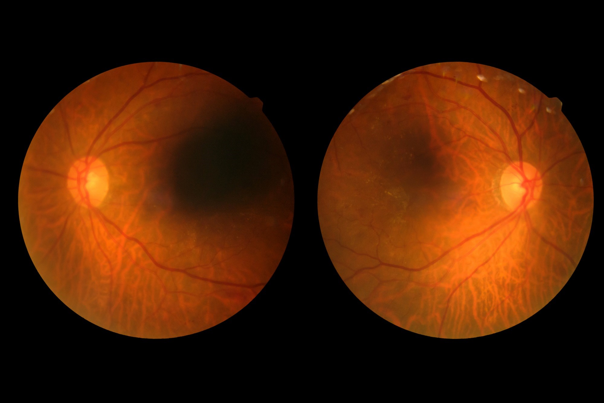 Using data from the FDA Adverse Event Reporting System, researchers found no association between the use of GLP-1 receptor agonists and risk for diabetic retinopathy.